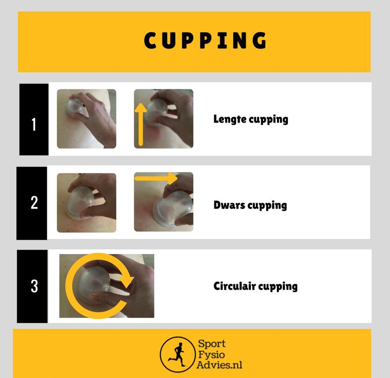 Cupping technieken