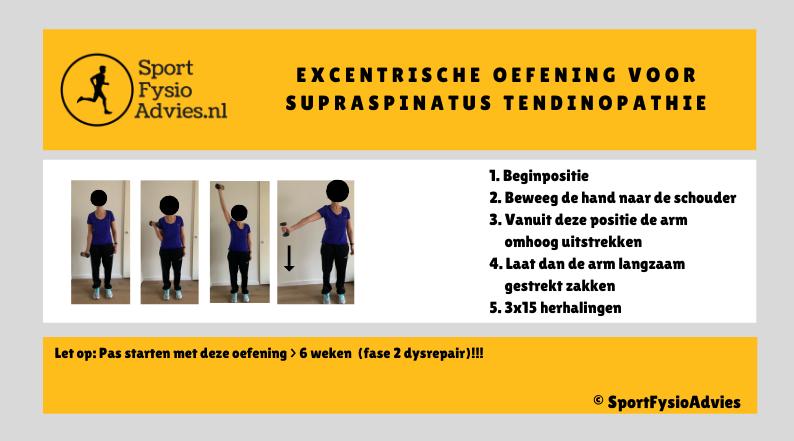 Excentrische oefening supraspinatus